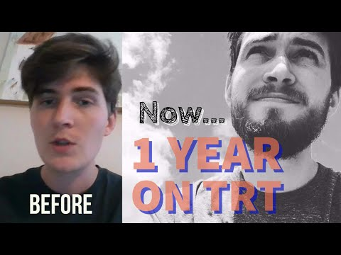 1 Year On Testosterone Replacement Therapy