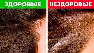 Что Волосы Могут Рассказать о Вашем Здоровье