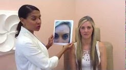 Botox BEFORE & AFTER By Dr. Andrea Trowers
