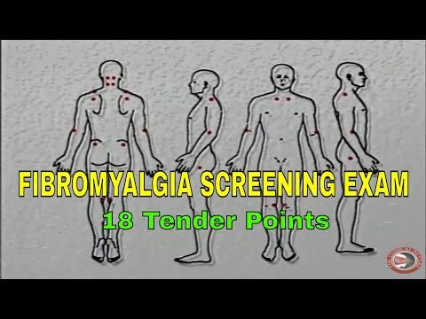 FIBROMYALGIA - Screening for the 14 Tender Points