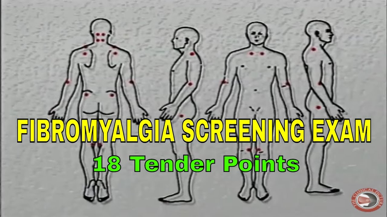 fibromyalgia - screening for the 14 tender points