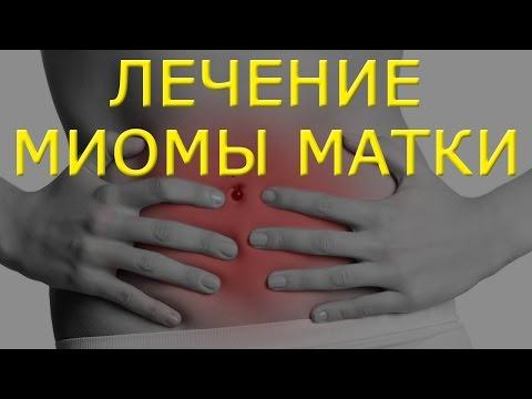 Лечение миомы матки народными средствами и методами
