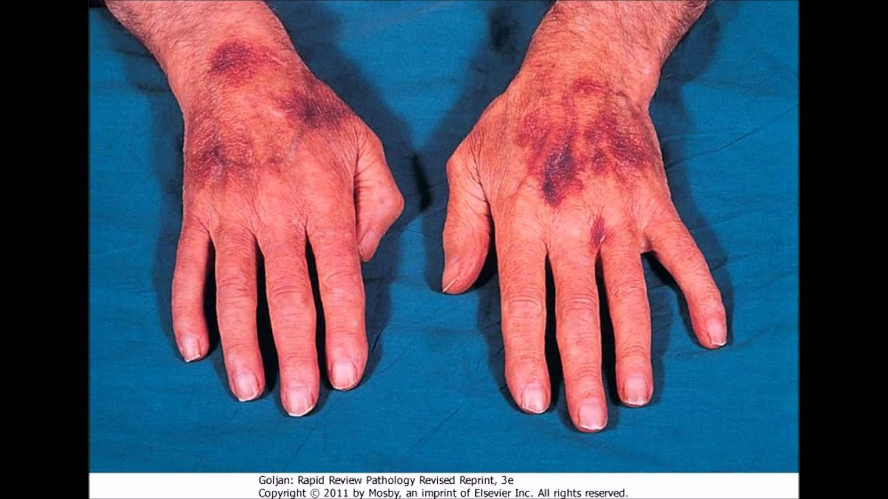 gauchers disease Gaucher disease (gd), the most common lysosomal storage disorder (lsd), is  caused by the defective activity of the lysosomal hydrolase glucocerebrosidase,.