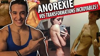 ANOREXIE ! VOS TRANSFORMATIONS INCROYABLES !