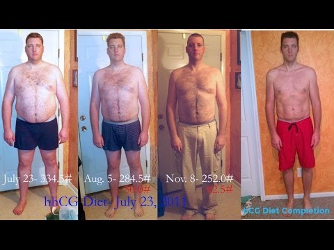 Guys: hCG Diet Results for Men - 110lb Weight Loss ...