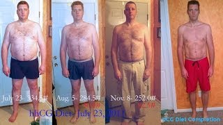 Guys: hCG Diet Results for Men - 110lb Weight Loss - Episode 9: hCG Diet Interviews