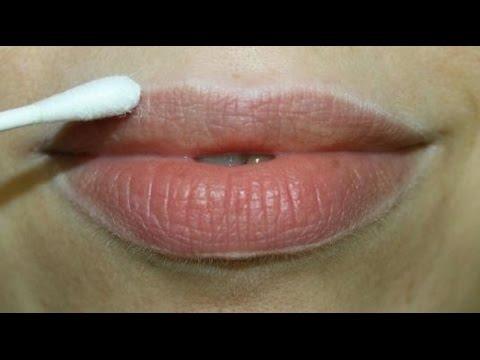Lip Discoloration Lightening Treatments (Aventura, FL)