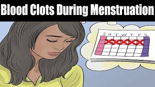 How to Prevent Large Blood Clots During Menstruation