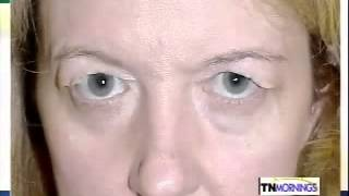 See Results From a Real Patient After Hidden Incision Brow Lift and Eyelid Lift