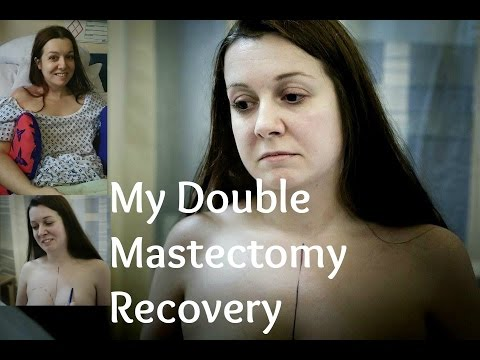 My Double Mastectomy Recovery Previvour - My BRCA2+ Life Experience