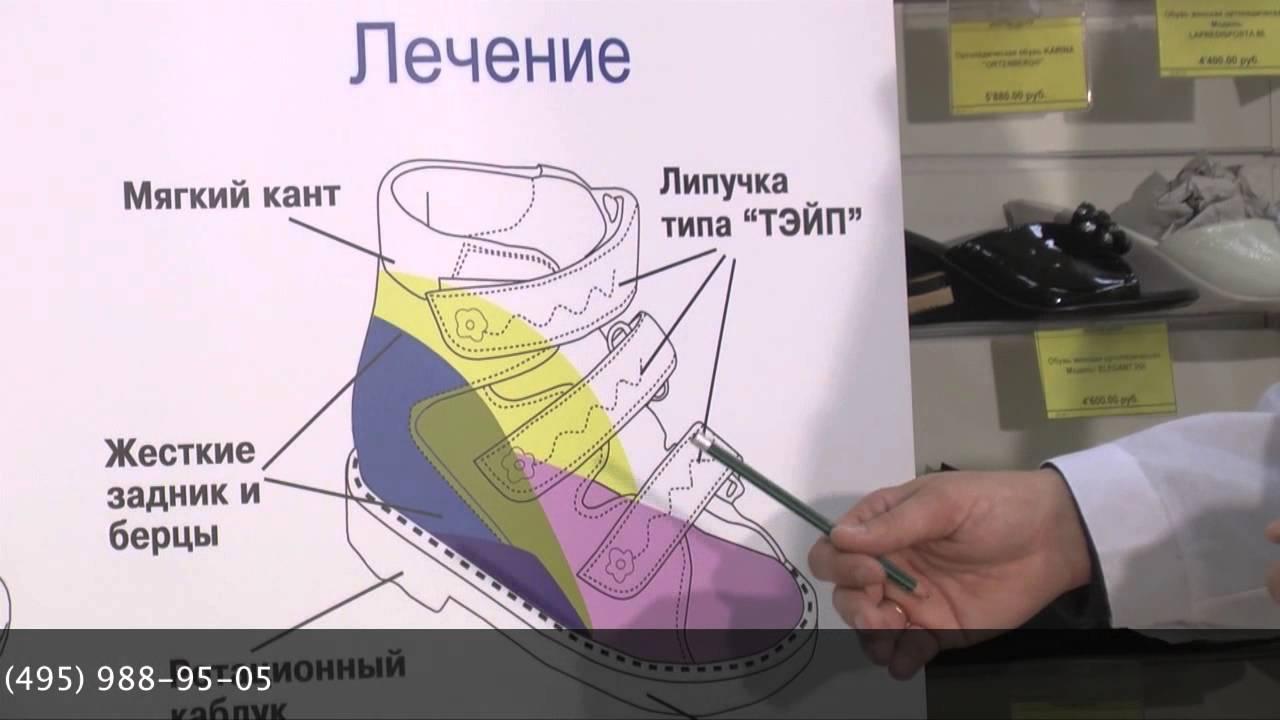 5cc38e2d6 Сложная ортопедическая обувь - как выбрать и заказать