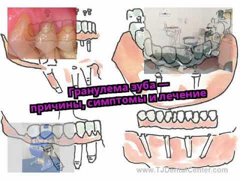 Гранулема зуба — причины, симптомы и лечение