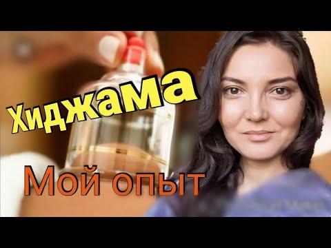 ХИДЖАМА. КАППИНГ -