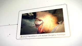 Face and Neck Lift Actual Surgery Footage