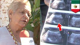 メキシコで71歳の女性が妊娠し話題となっている。現在妊娠6か月を迎えた...