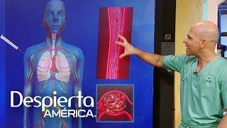 El en médica cerebro para Terminología coágulos sanguíneos