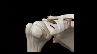 Breaking Down The Differences In AC Joint Sprains