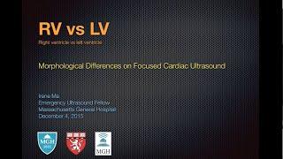 RV versus LV