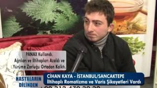 İLTİHAPLI ROMATİZMA   VARİS