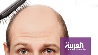 صباح العربية : الخلايا الجذعية علاج لتساقط الشعر والصلع؟
