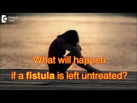 What will happen if a fistula is left untreated? Dr. Rajasekhar M R