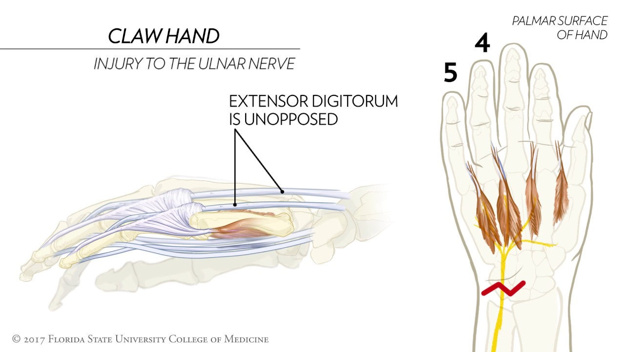 Hand Nerves Diagram Network Vpn Tunnel Claw Ape And The Sign Of Benediction Animated Review