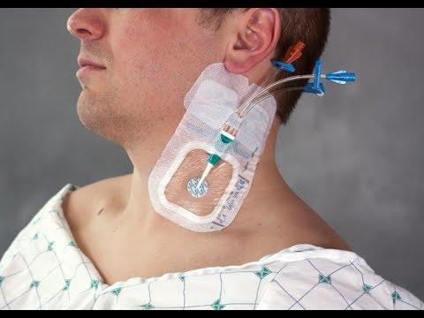 Acesso Venoso Central (jugular interna) - New England Journal of Medicine (legendado/traduzido)