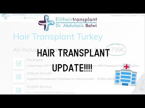 Hair Transplant - 6 month update!