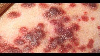 Симптомы СПИДа у женщин
