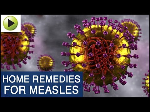 Skin Care - Measles - Natural Ayurvedic Home Remedies