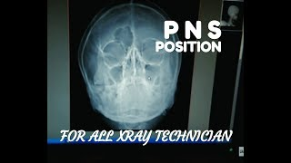 PNS & PNS WATER VIEW POSITIONING, ANATOMY AND PHYSIOLOGY PART- 21