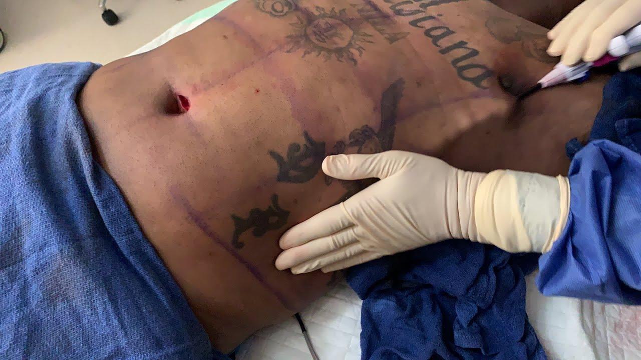 LIVE Gynecomastia Surgery - Renuvion Jplasma for Skin Tightening