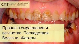 видео Реставрация передних  зубов с материалами Coltene