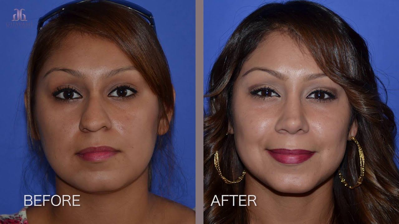 Plastic Surgery Miracle Rhinoplasty Patient Experience