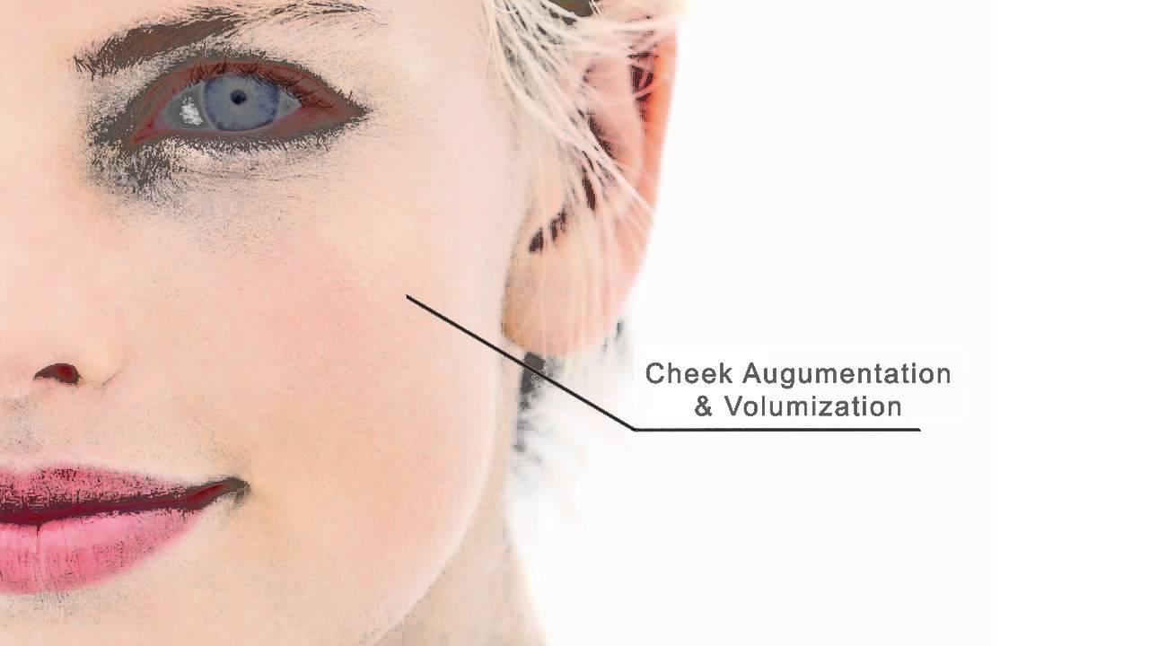 Ellanse Wrinkle Smoothing London   Collagen Stimulating UK