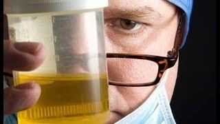 Schlechter Harngeruch 8 mögliche Ursachen