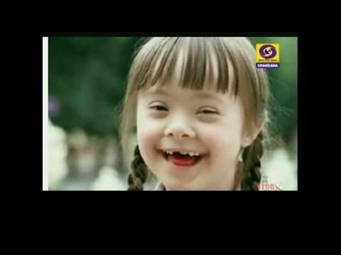 Down Syndrome and its Management in Children by Dr : Asha Sheligappa