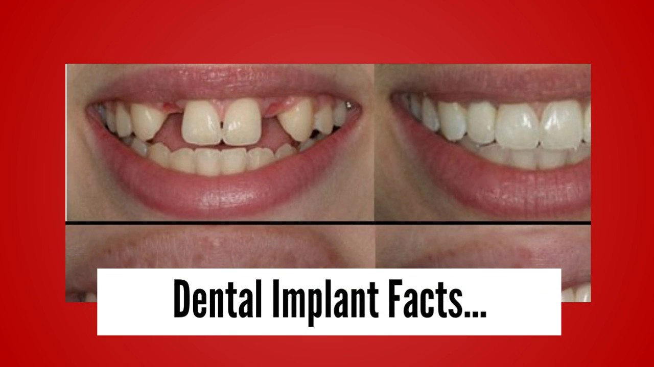 Dental Implant Facts