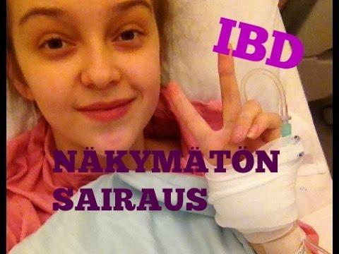 Mun sairaus Colitis Ulcerosa // IBD