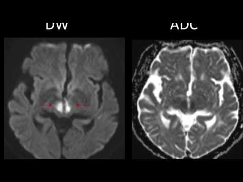 TMT: NEURORADIOLOGY SHORT CASES SERIES : Case 1
