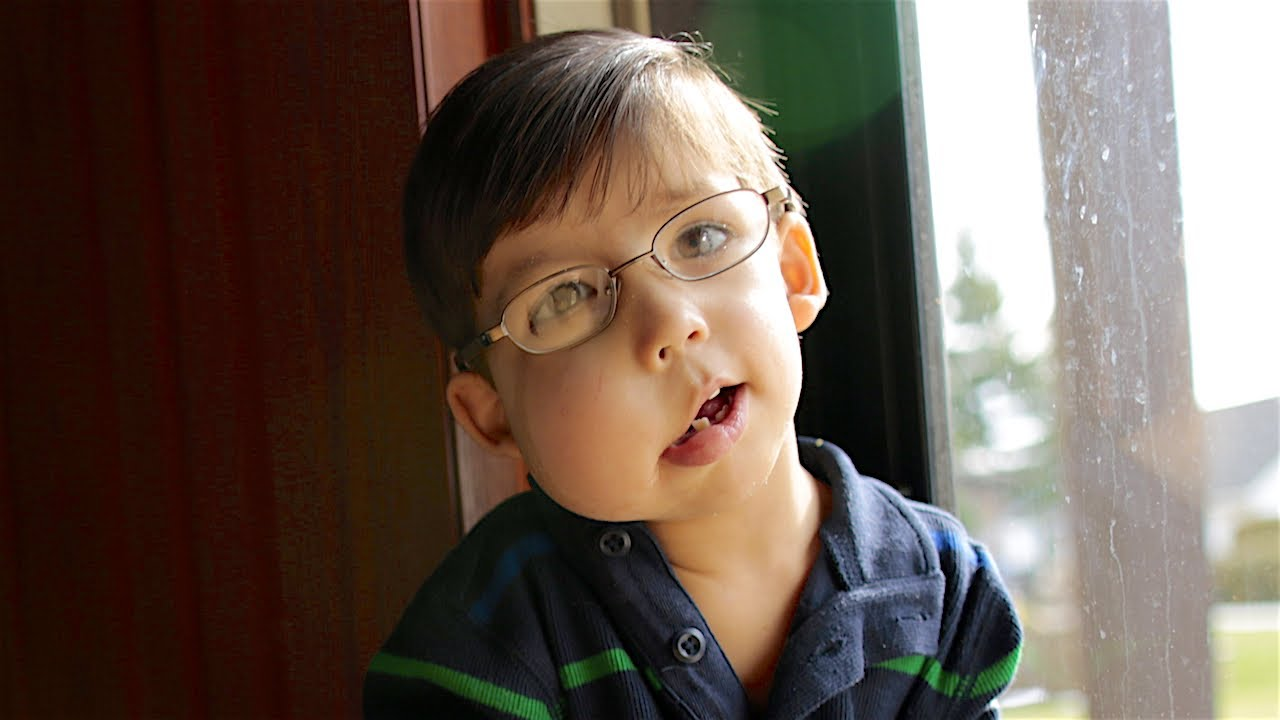 one-in-a-million-boy-with-cloves-syndrome-born-different