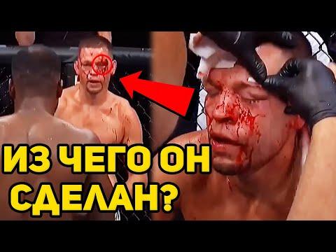 ВОТ ПОЧЕМУ ЛЕОН ЭДВАРДС РАЗОБРАЛ НЭЙТА ДИАСА НА UFC 263!