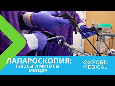 Лапароскопия: плюсы и минусы метода