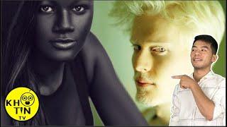 13 người có màu da độc đáo bậc nhất loài người sẽ khiến bạn kinh ngạc