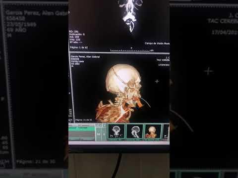 Resultado de imagen para tomografia a alan garcía