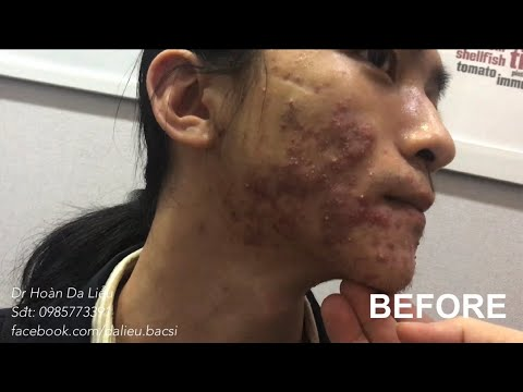 Dermatologist treating squeeze pimples, whitehead blackhead, pustule, anti acne after 2-6 weeks