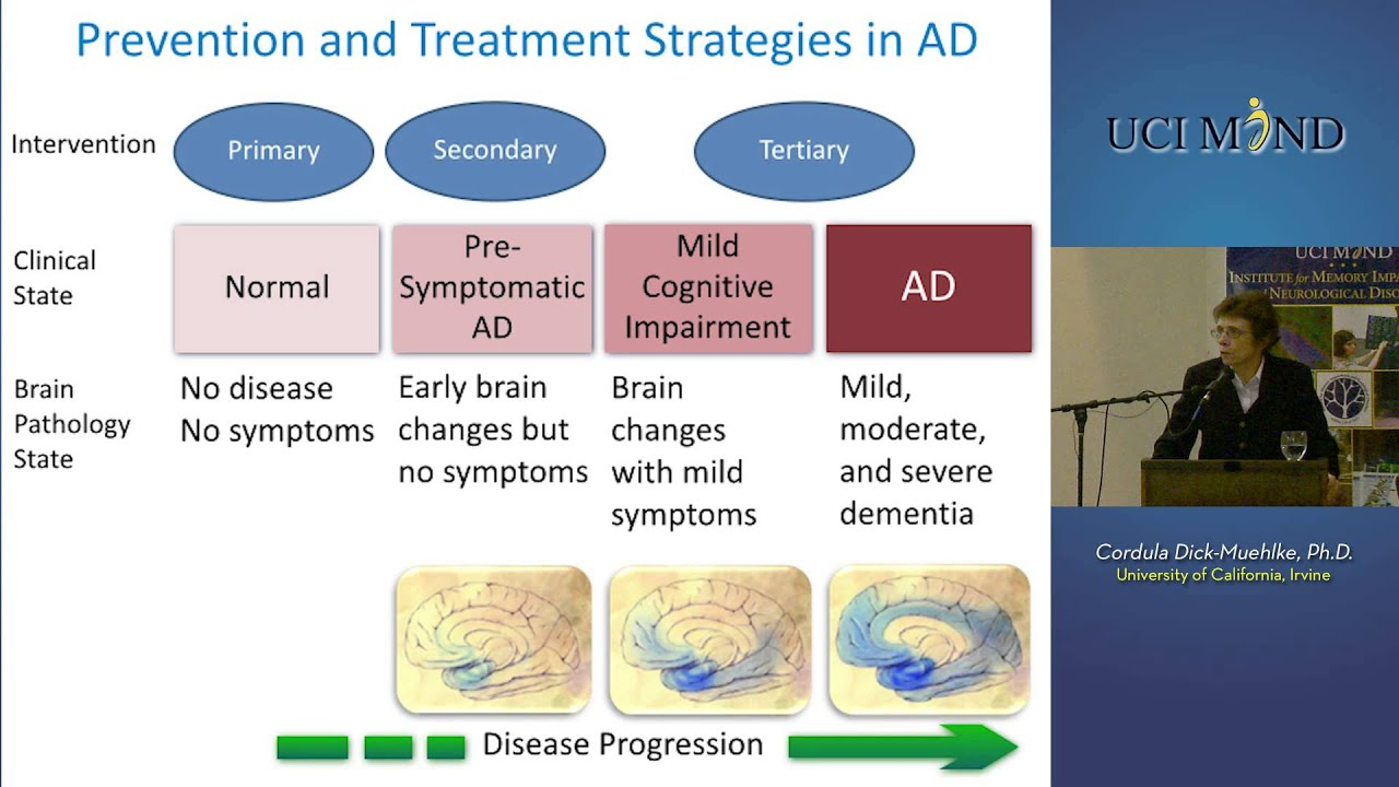 alzheimer s disease symptoms and treatment Learn about alzheimer's, including symptoms, stages of the disease, and treatment.