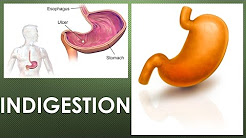 What does indigestion feel like? What are the symptoms of functional dyspepsia?