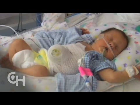 syndrome de beckwith-wiedemann delivery and treatment of babies with omphalocele 7 of 11