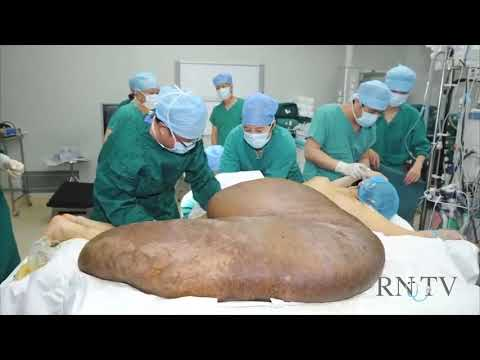 Biggest Tumor Removed! Holiday Miracles Show. RNTV - Reel Nurses Television